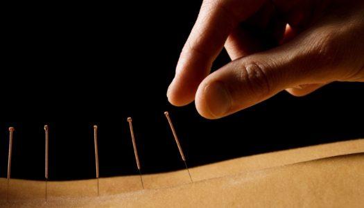 Horror Short: The Acupuncturist